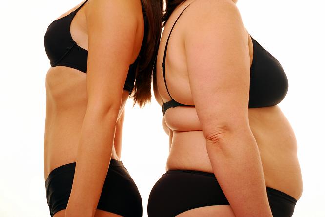 Surpoids et obésité : Toutes les infos sur les risques, les conséquences…